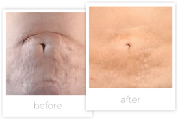 before-and-after-surgical-scar-stretch-marks